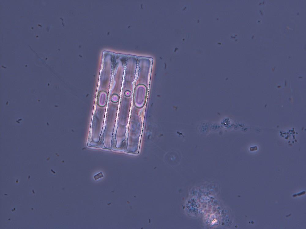Kieselalge (Fragillariopsis kerguelensis) und Bakterien aus einem Eisbohrkern